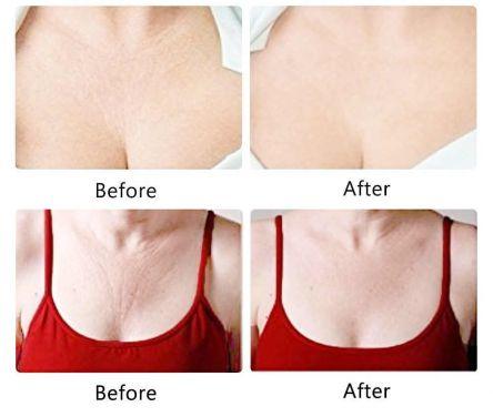 Madona Breast Course
