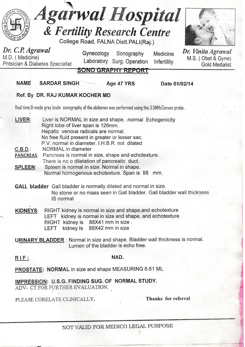 sardar-singh-gall-bladder-stone-treatment-3