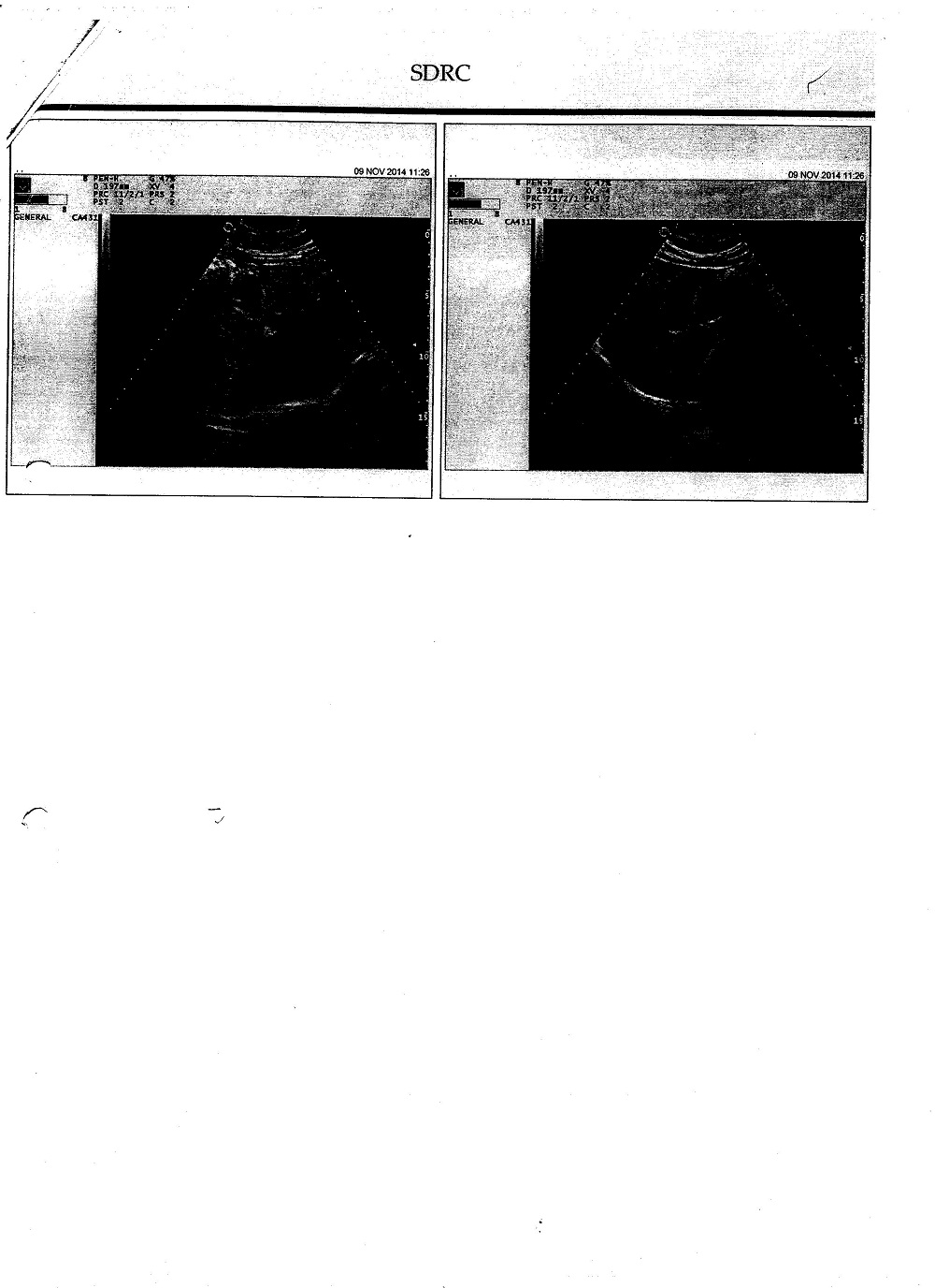 v-ramchandra-left-kidney-small-in-size-echozenecity-increased-cmd-lost-2
